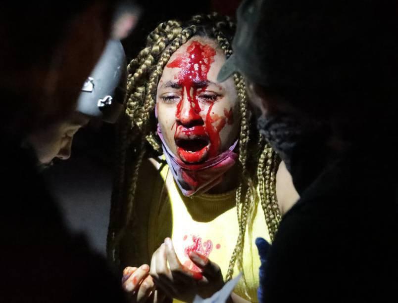 Washington, 30 de maio: Mulher machucada durante protesto perto da Casa Branca pela morte de George Floyd
