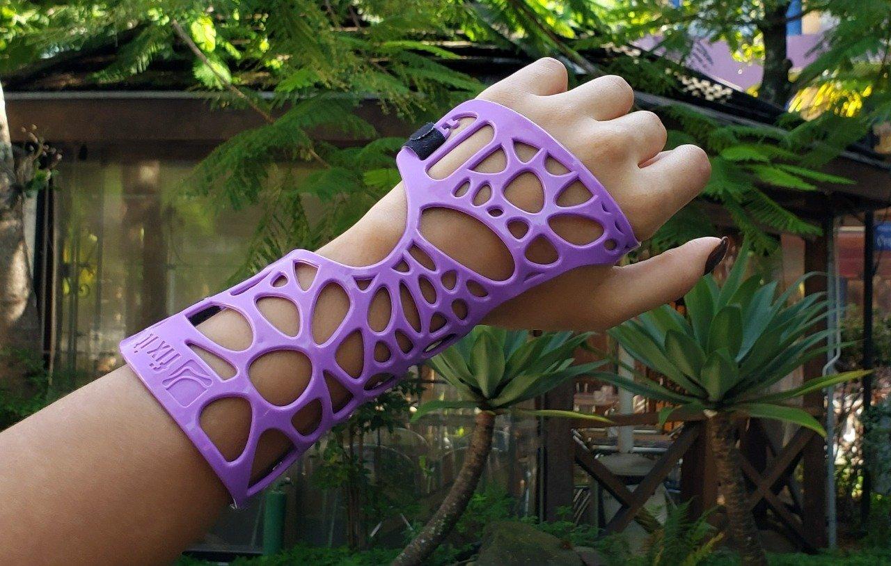 Com impressão 3D, Fix it propõe tratamento ortopédico sustentável